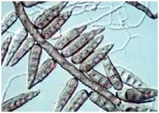 Conidia helminthosporium oryzae. Define helminthosporium