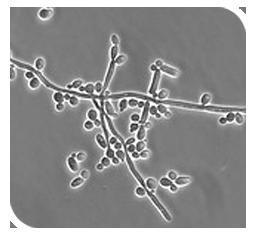 Homophiles paragallinarum
